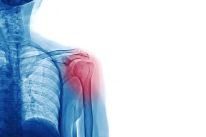 Shoulder Dislocation - Blog - Courtyard Clinic Malmesbury